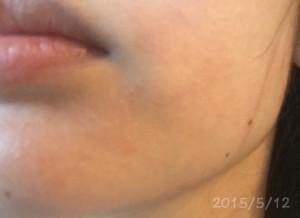 究極のシンプルスキンケア20150512顎