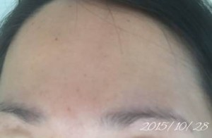 2015年10月28日 基礎化粧品を使わない肌の経過記録