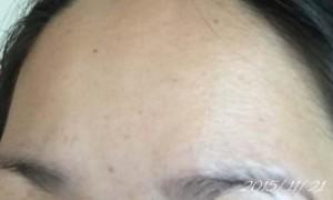 2015年11月21日 基礎化粧品を使わない肌の経過記録