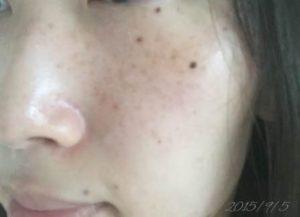 2015年9月5日 基礎化粧品を使わない肌の経過記録